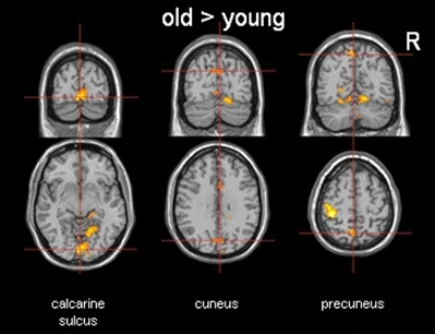 Young to old brains